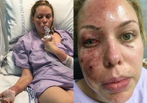 Felicia Djamirze được điều trị trong bệnh viện sau cuộc ném lựu đạn.