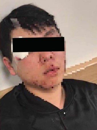 sinh vien trung quoc bi xin deu va danh dap o canberra 2 - Sinh viên Trung Quốc bị xin đểu và đánh đập ở Canberra
