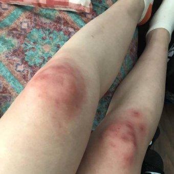 sinh vien trung quoc bi xin deu va danh dap o canberra 3 - Sinh viên Trung Quốc bị xin đểu và đánh đập ở Canberra