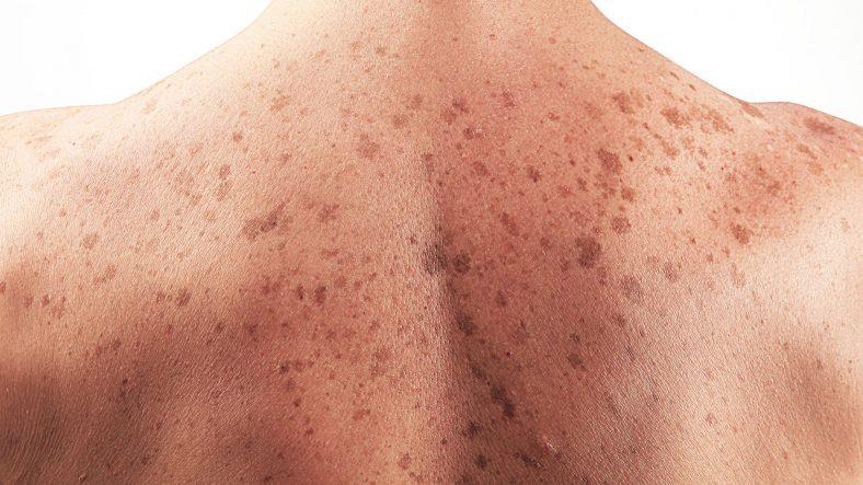 Skin cancer2 - Bác sĩ chuyên ung thư da sẽ mở buổi khám miễn phí tại Federation Square cuối tháng này tại Melbourne