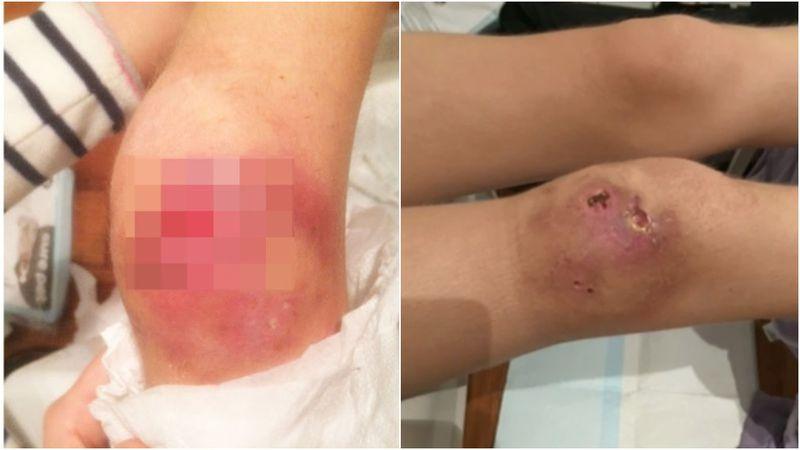"""Flesh eating bug epidemic1 - Dịch khuẩn """"ăn thịt người"""" tấn công Victoria"""