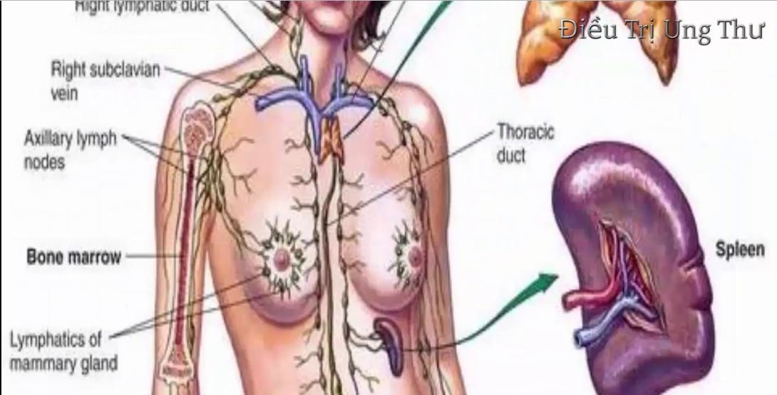ung thư hạch Hodgkin - Úc giảm giá thuốc điều trị ung thư Hodgkin từ 200 000 đô chỉ còn 40 đô la