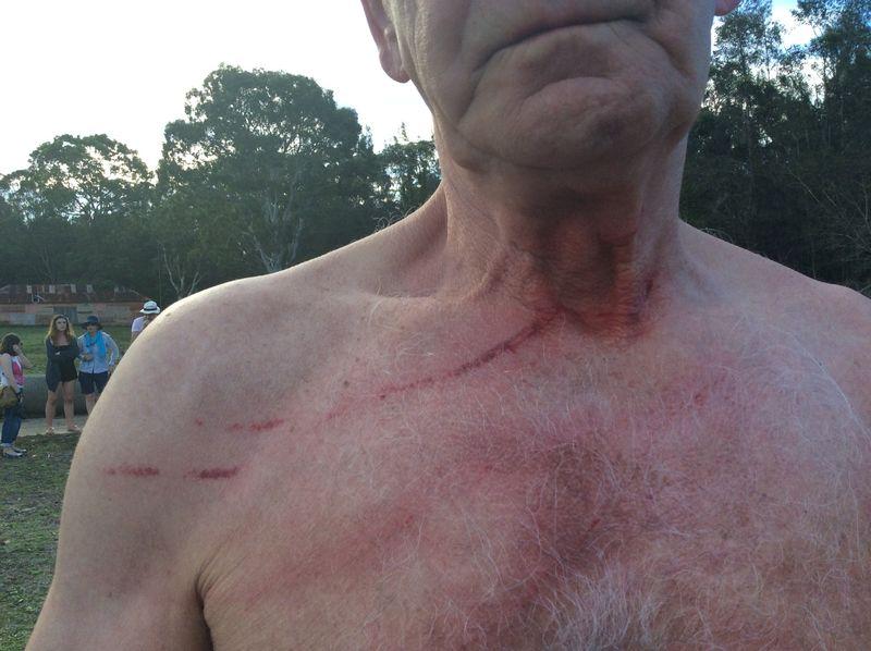 Kangaroos attacking tourists