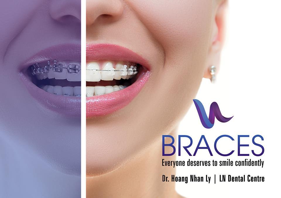 Braces LN Dental Chester Hill